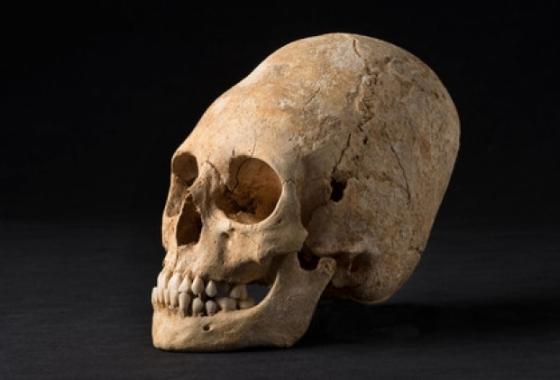Alsace : un crâne allongé du Ve siècle découvert à Obernai